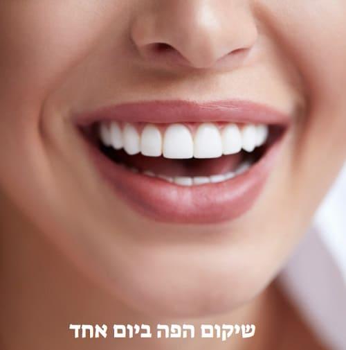 שיקום הפה ביום אחד